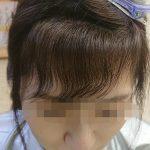 施術事例:前髪の縮毛矯正